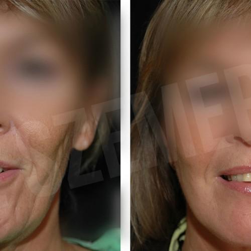 facelift3_e1611988802687_607e199a3cfc1.jpg